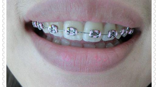 【台南牙醫權威】台南牙醫診所的矯正醫生超專業又貼心~是我查詢到裝牙套最專業價格也很推薦的牙科診所!