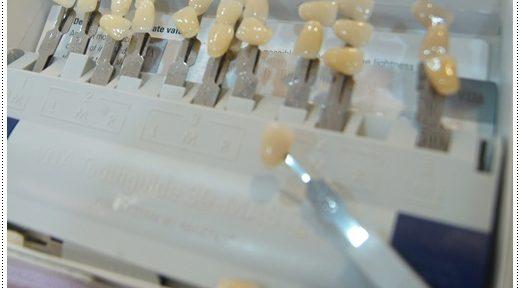 【牙齒】牙齒冷光美白分享推薦到台北牙醫診所做美白牙齒,快速又方便,終於有一口白淨的牙齒了!