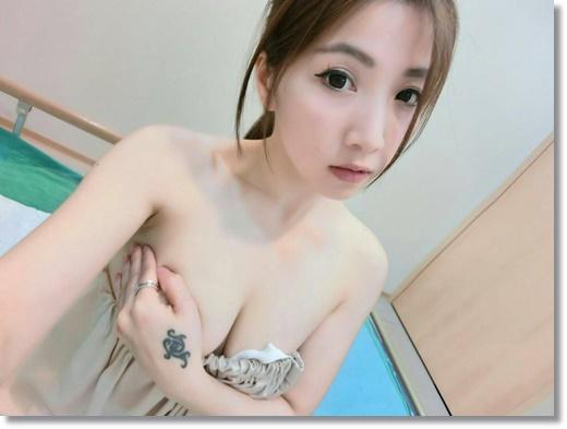 【台北自體脂肪隆乳】我長大了~台北整型外科自體脂肪抽脂移植隆乳手術大成功分享